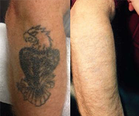 Clean Canvas Laser Tattoo Removal